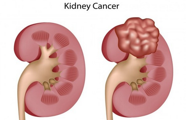 Signs and Symptoms of Kidney Cancer