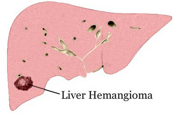 Benign Tumors Hemangioma