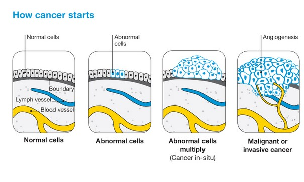 How cancer starts in the body