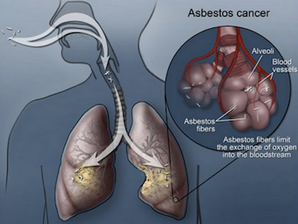 Signs and Symptoms of Asbestos Lung Cancer