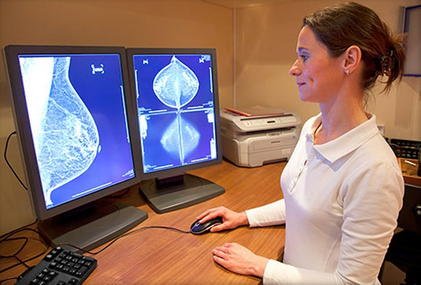Latest Personalized Breast Cancer Research Reveal Novel Facts