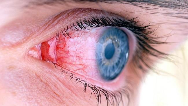 Crohn's disease, inflammation of eyes