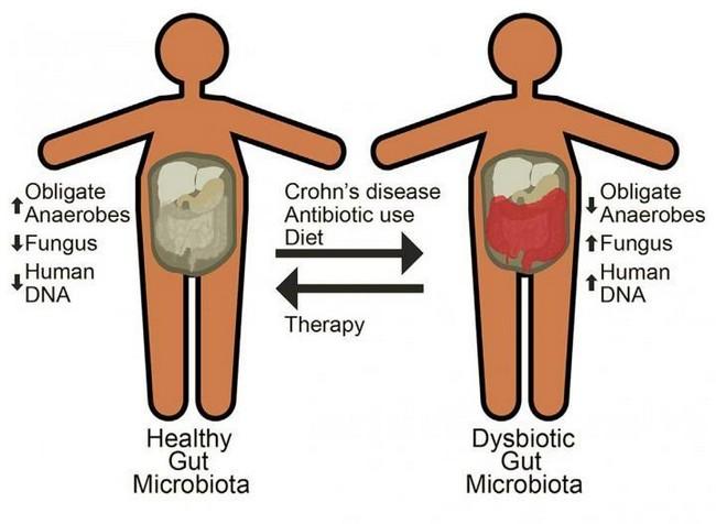Understanding the symptoms of Crohn's disease